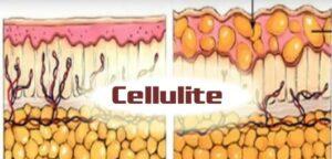 histologie cellulite