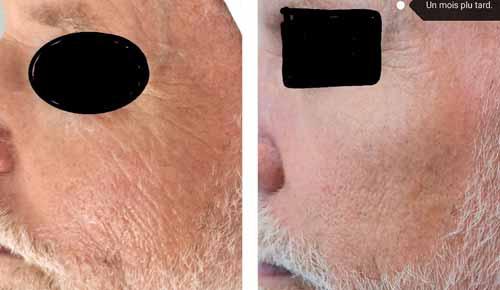 Phtotos de HIFU du visage avant-apres traitement