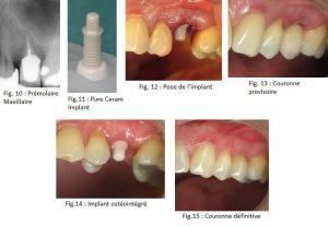 Dr S. Zarrine / Laboratoire Oral Beauty