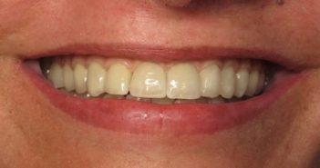 Esthétique gingivale en implantologie