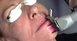 laser co² sur le visage