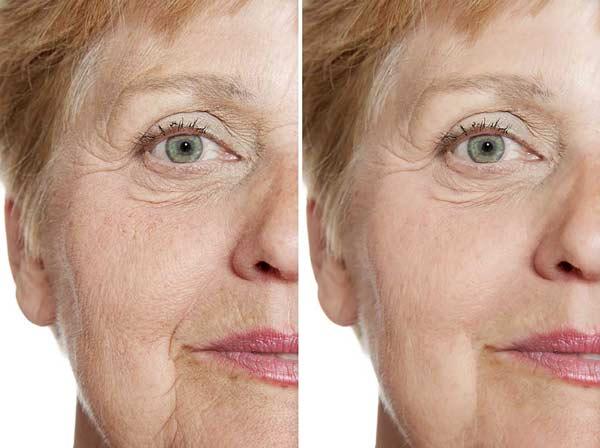 visage avant-après radiofréquence exilis