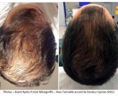Nouvelle technique thérapeutique pour l'alopécie : la mésogreffe°