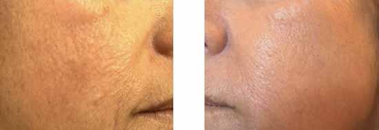 peau du visage avant et après laser de resurfacing