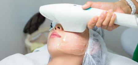 traitement lampe flash photorajeunissement du visage
