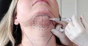 injection du double menton