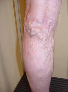 Varices sur jambe d'homme
