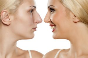 visages de femme de profil avec nez refait