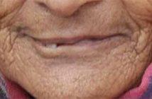 lèvres de vieille femme
