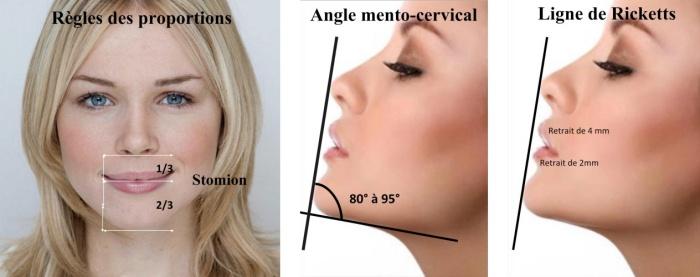 Menton et harmonie du visage