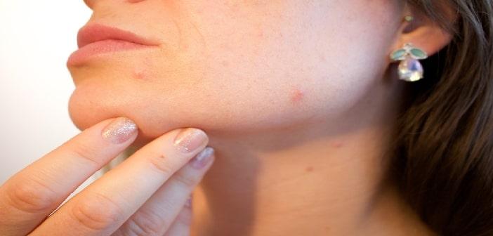 Restaurer le microbiote pour soigner l'acné