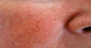 Face à face entre l'acné et la rosacée du visage