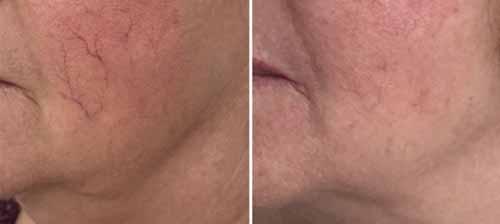 vaisseaux de couperose avant-apres laser sur la joue