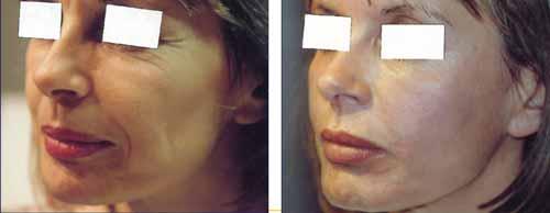 visage avant-apres injection du sillon nasogenien