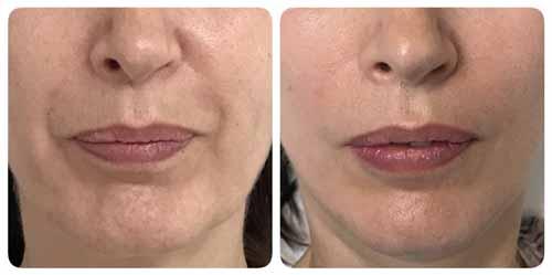visage avec sillons nasogeniens avant et apres injections