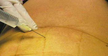 Injection anesthésique tumecente