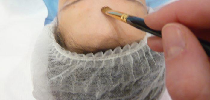 application de solution pour peeling léger