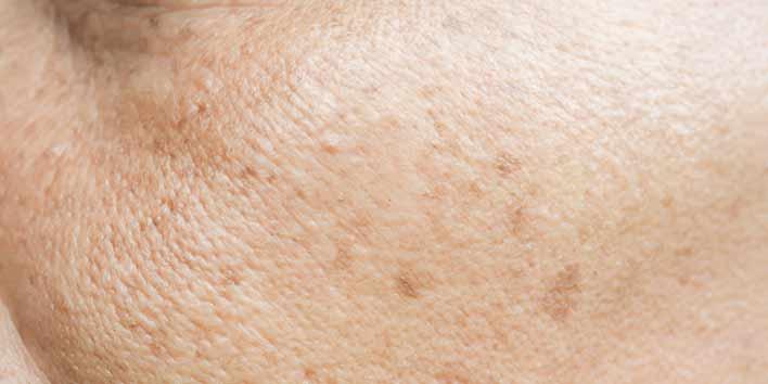 Lentigo, taches brunes sur la joue
